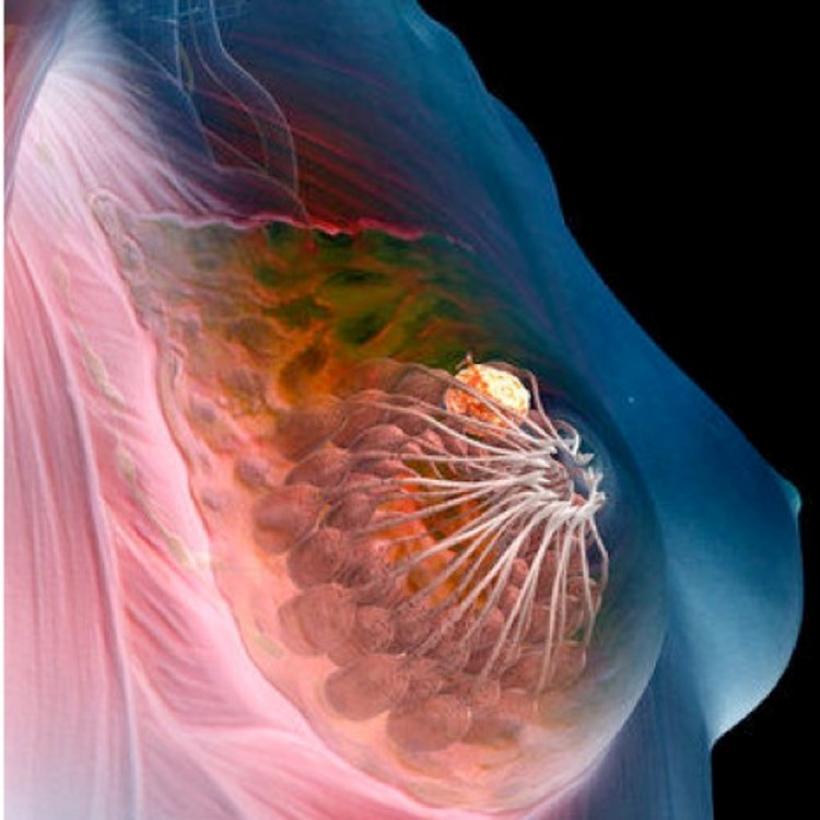 Breast cancer. The yellow mass in the illustration depicts a tumor located in a glandular tissue of the breast.