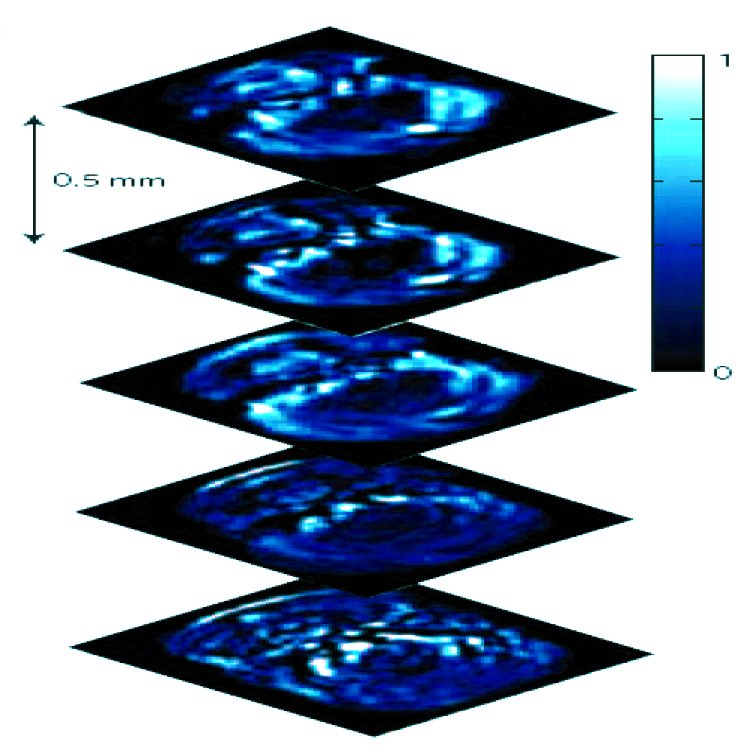 Photo-acoustic sectioning. Five transverse opto-acoustic imaging slices through the hindbrain area at the level of crista cerebellaris of a living zebrafish.